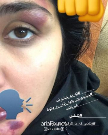maryam 1 360x450 - ماجرای و دلیل حمله و ضرب و شتم مریم معصومی +عکسها